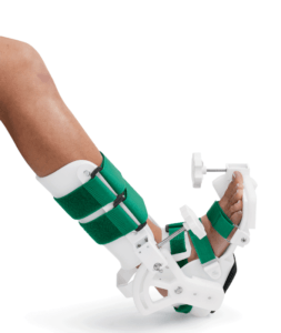 The JAS Ankle system utilizes Static Progressive Stretch to achieve permanent restoration of joint ROM in three 30-minute sessions per day.